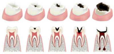 Dr. Patel, Dentist Jacksonville, FL, Root Canals