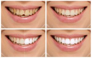 Dr. Patel, Cosmetic Dentistry, Jacksonville, FL Dentist, Smile Makeover
