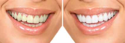 Dr. Patel, Cosmetic Dentistry, Jacksonville, FL Dentist, Teeth Whitening Options
